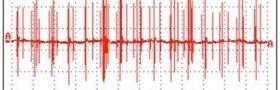 «Smartmålere» påvirker hjerterytmen